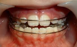 Odontologia Estetica Extraccion Emergencia Ortodoncia Inter